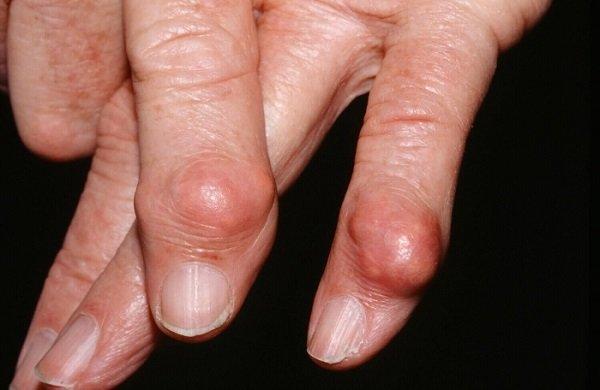 Как правило, болезнь начинает проявляться с отека пальцев и появления острой боли в суставах