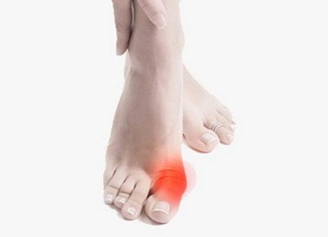 Приступы возникают неожиданно и бывают настолько сильными, что человек не знает, куда положить больную ногу