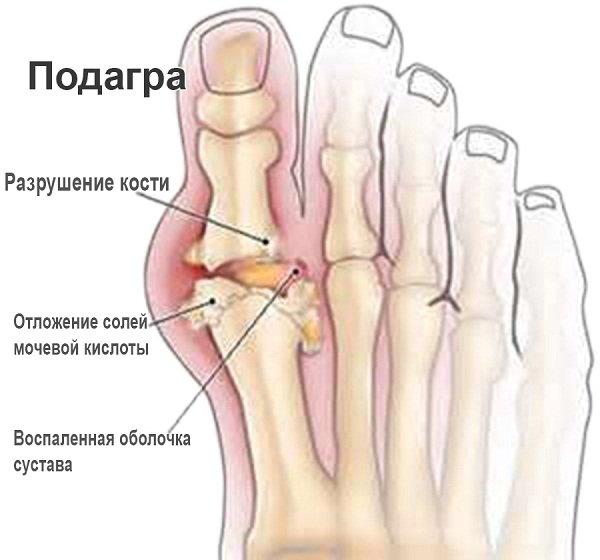 Основная причина данной суставной патологии состоит в отложении на поверхности суставов кристаллов мочевой кислоты, или уратов натрия