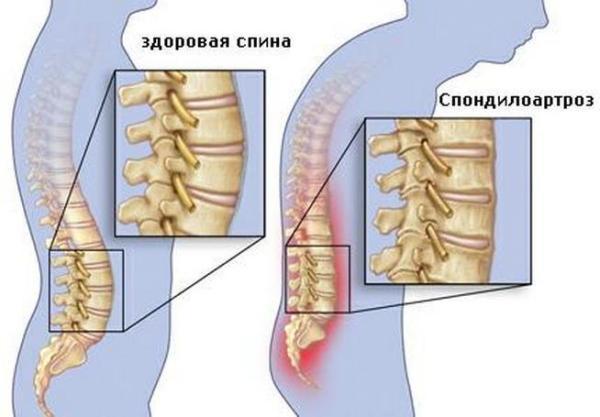 Спондилоартроз позвоночника представляет собой одну из форм остеоартроза, при котором воспалительный процесс приводит к ограничению подвижности позвоночного столба