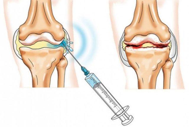 Уколы в суставы при артрозе снимающие воспаление 1 стадия коленного сустава