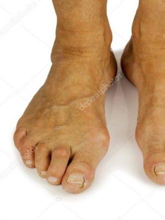 hammer toes symptoms - 1000×1000