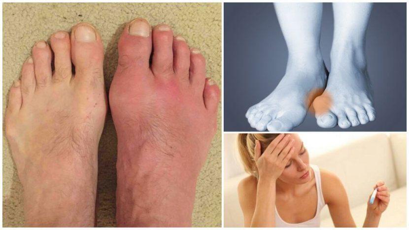 Как лечить подагрический артрит пальцев ног