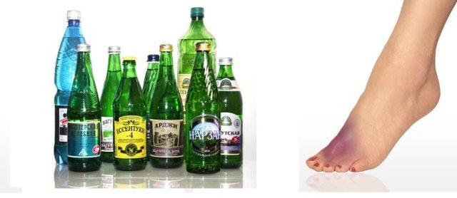 Минеральная вода при подагре и мочекаменной болезни