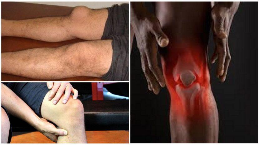 Международный стандарт лечения ревматоидного артрита